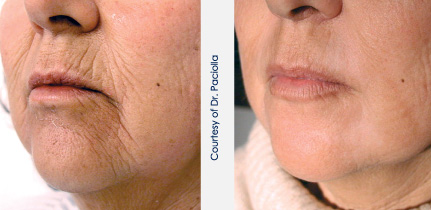 Non-surgical-laser-face-lifting