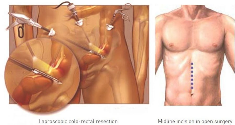 Colorectal resection - World Class Healthcare in Vietnam